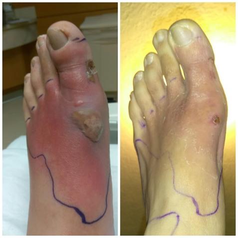 Evolution du pied en 138 heures de jeûne sec
